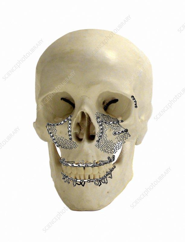 Facial skull fractures fixation, artwork