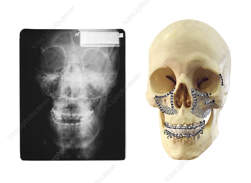 Facial skull fractures fixation