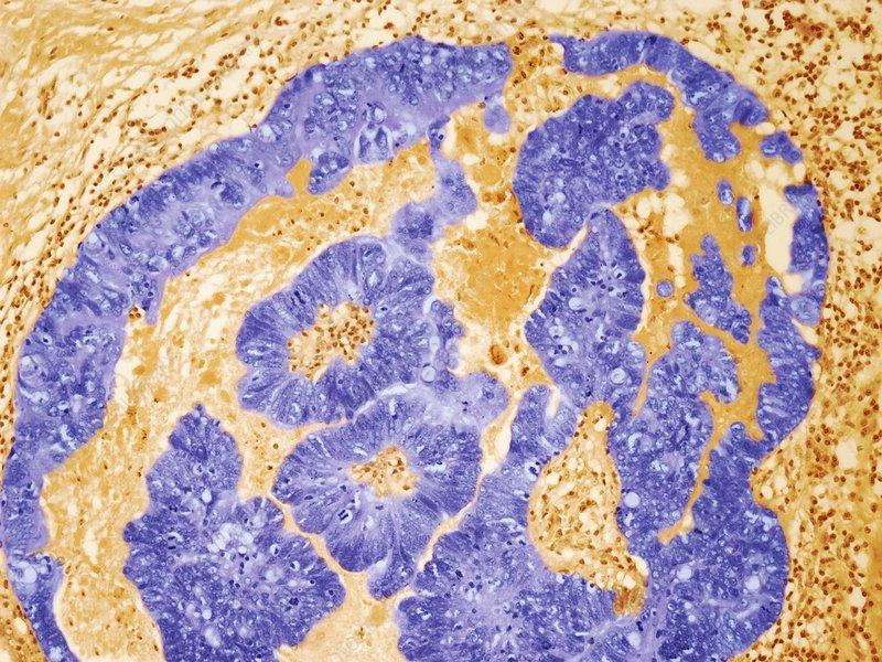 Umbilical adenoma, light micrograph