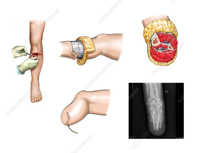 Below-knee leg amputation