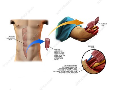 Abdominal muscle transplant to arm stump