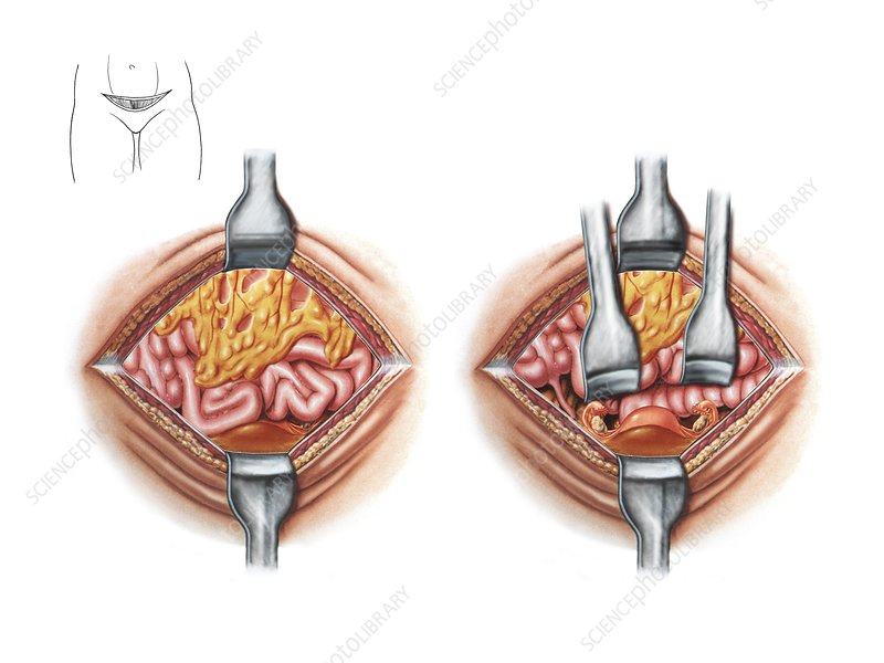 Hysterectomy incision, artwork