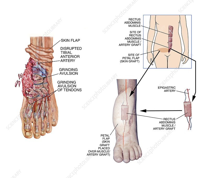 Graft surgery for degloving foot injury