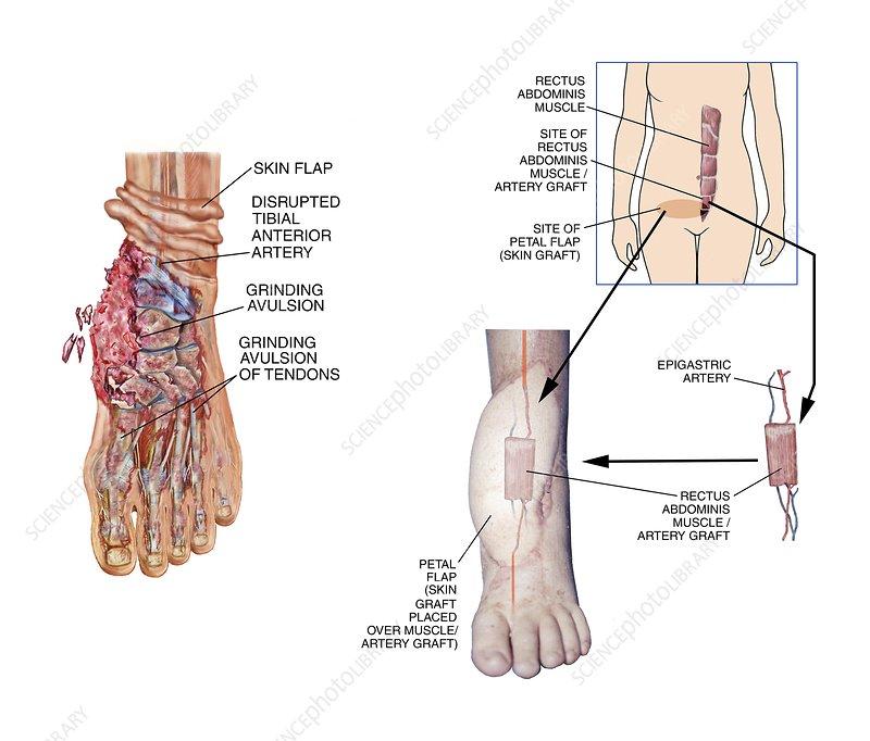 Graft surgery for degloving foot injury