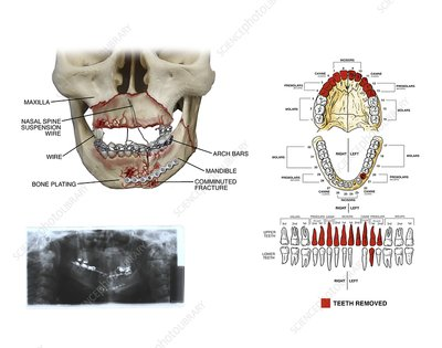 Mouth and facial fractures surgery