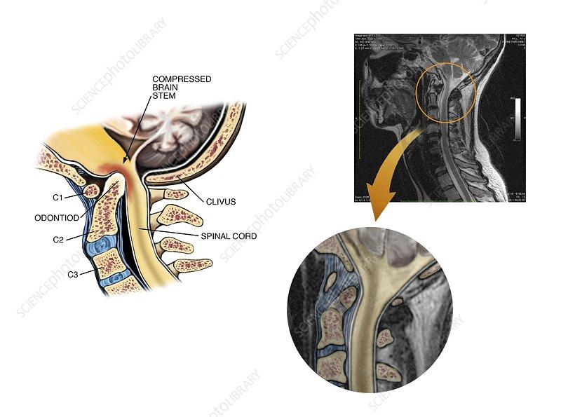 Basilar invagination brainstem injury