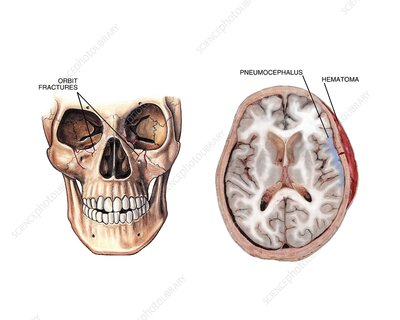 Facial fractures and brain injuries