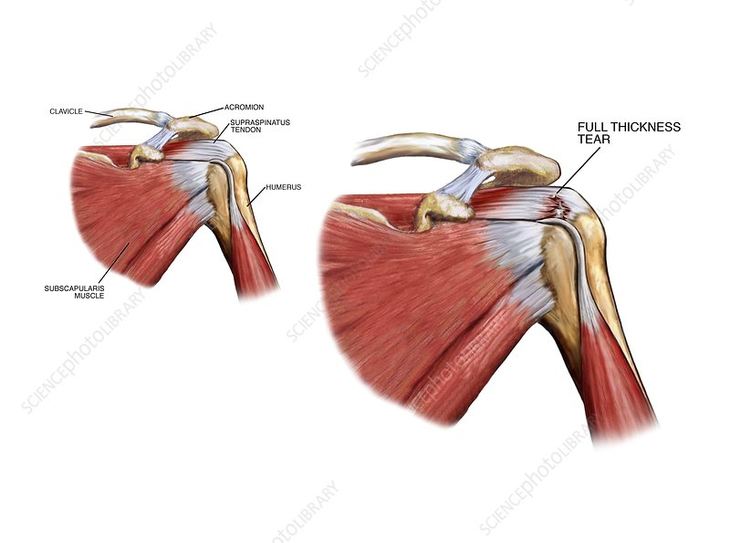 shoulder tendon injury stock image c021  1028 science