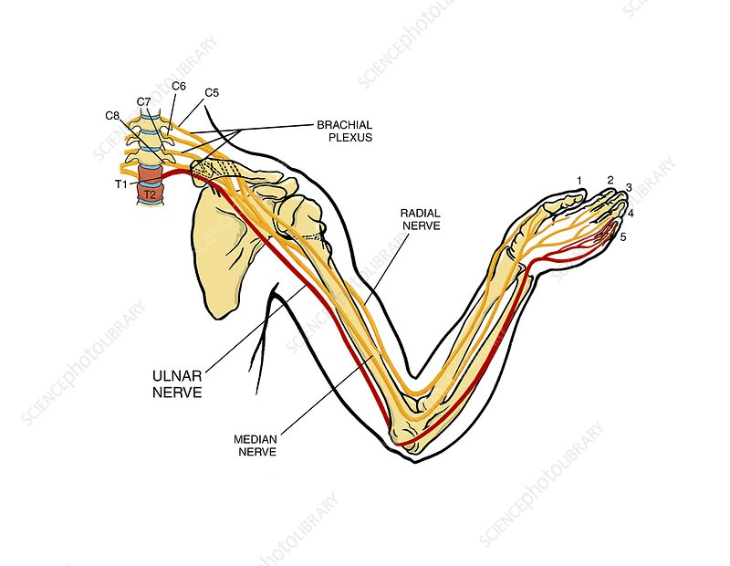 Brachial plexus arm nerve injury