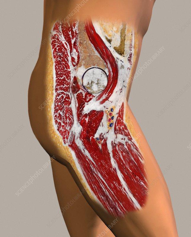 Hip anatomy, artwork