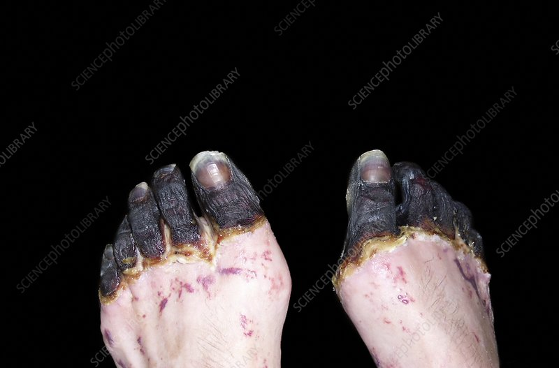 Dry gangrene caused by...