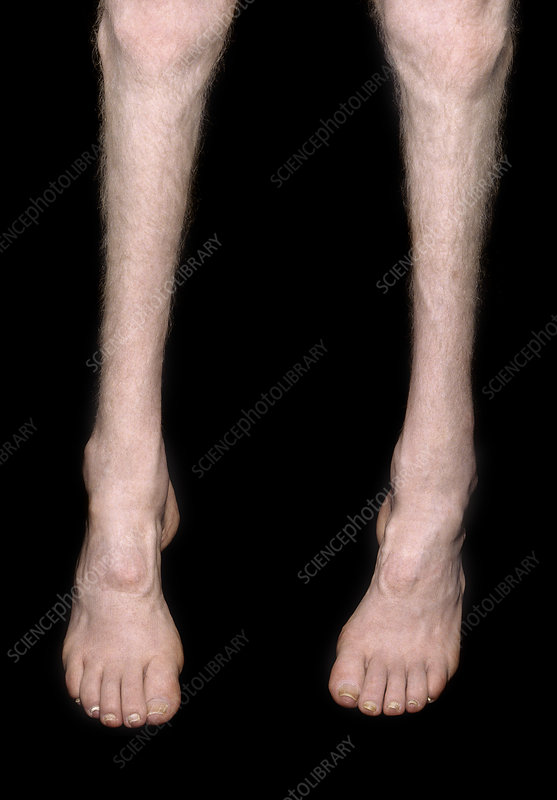 charcot marie tooth disease an inherited neurological disease Charcot-marie-tooth disease (cmt) is composed of types of inherited neurological disorders that affect motor and sensory peripheral nerves (neuropathy), resulting in weakness in the musculature the disease may get progressively worse over time.