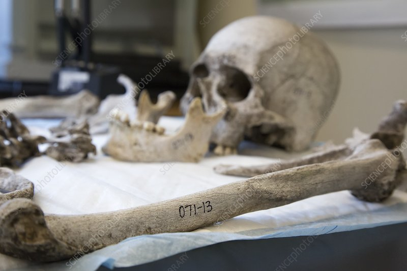Human remains in a forensics laboratory
