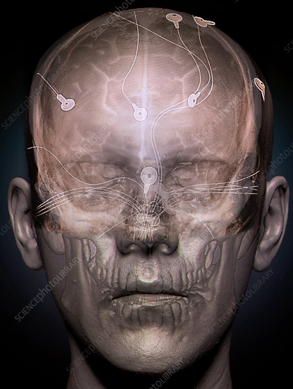 Electroencephalography, 3D CT scan