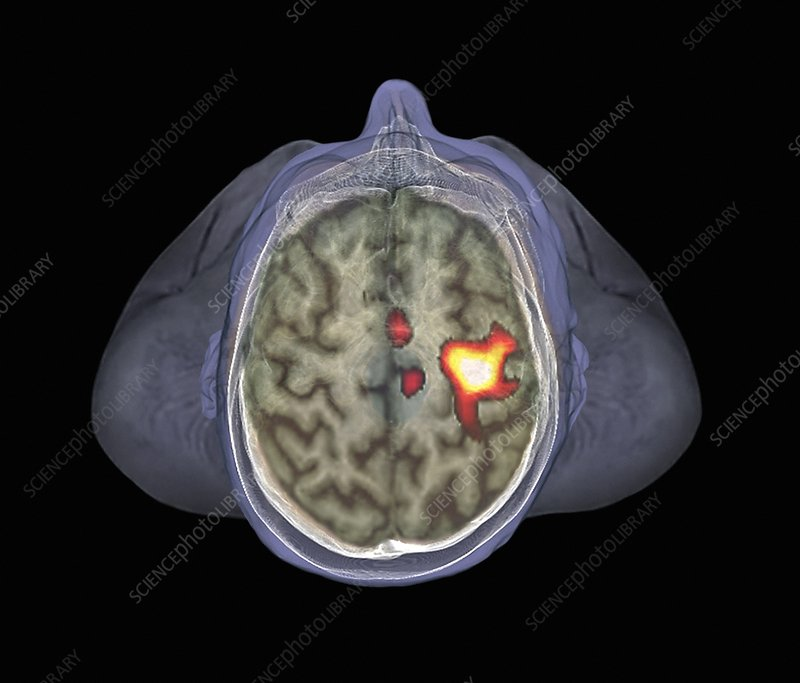 Healthy brain, fMRI scan