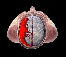 Brain haemorrhage, 3D MRI and CT scans