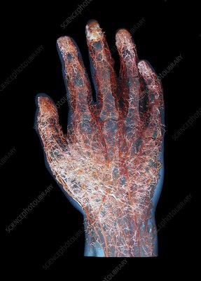 Human hand blood vessels, composite image
