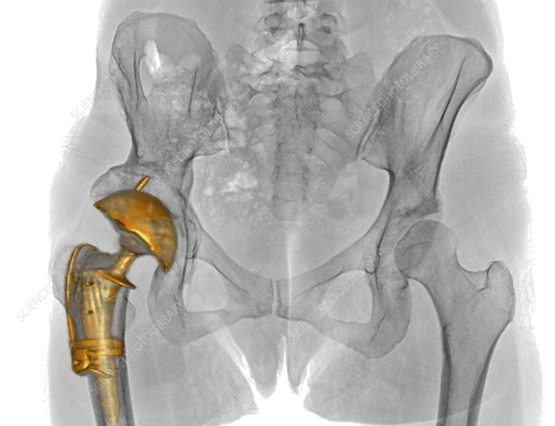 Hip replacement, 3D CT scan