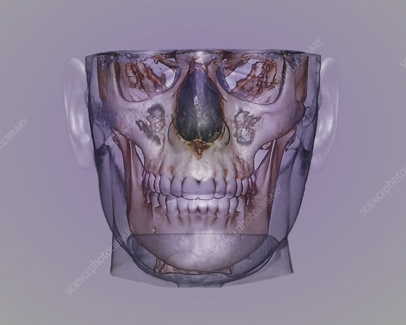 Human head, cone beam CT scan