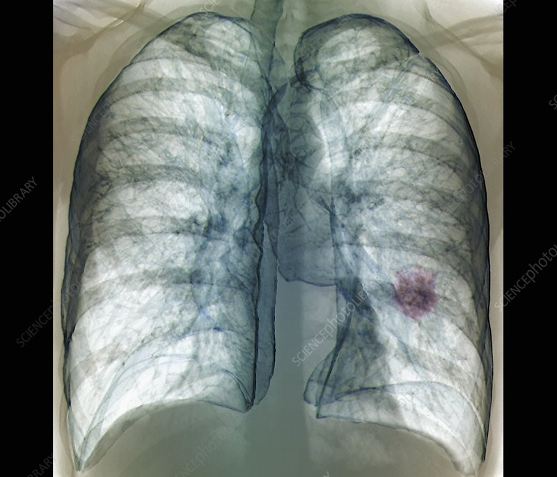 Lung cancer, 3D CT scan