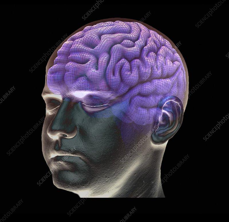 brain mri scan 3d - photo #46