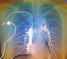 Breast cancer treatment, angiogram