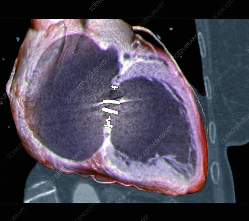 Artificial heart valve, 3D CT scan