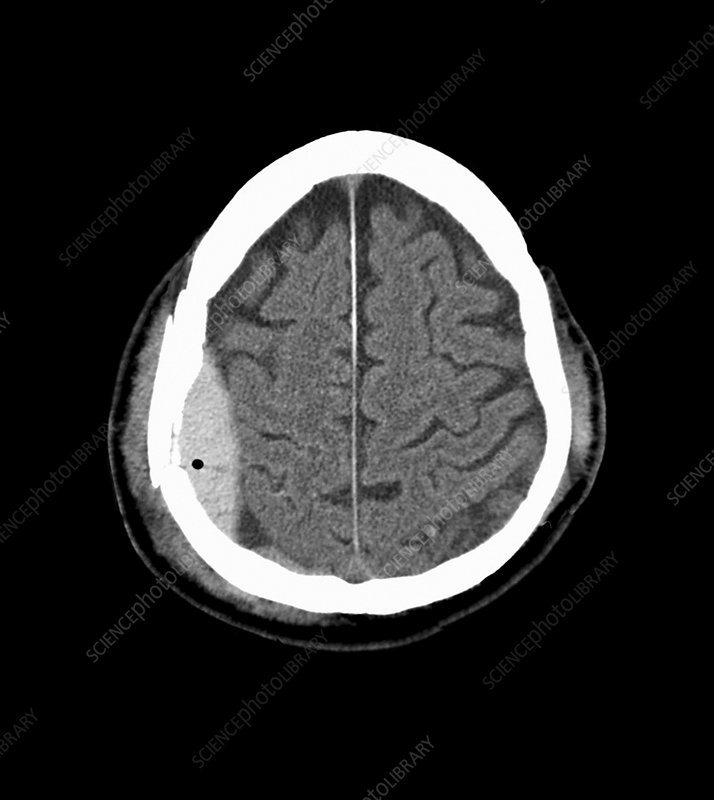Brain haemorrhage, CT scan