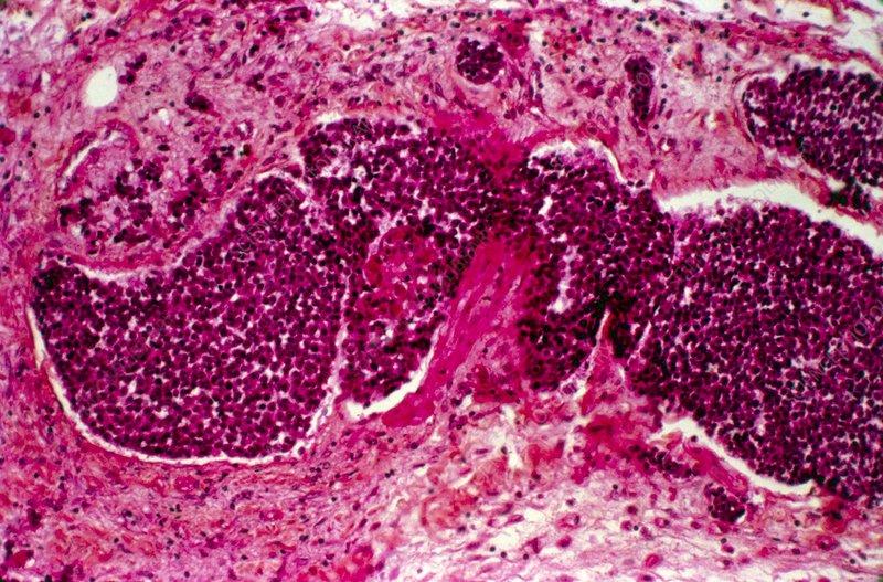 Pancreatic cancer, light micrograph