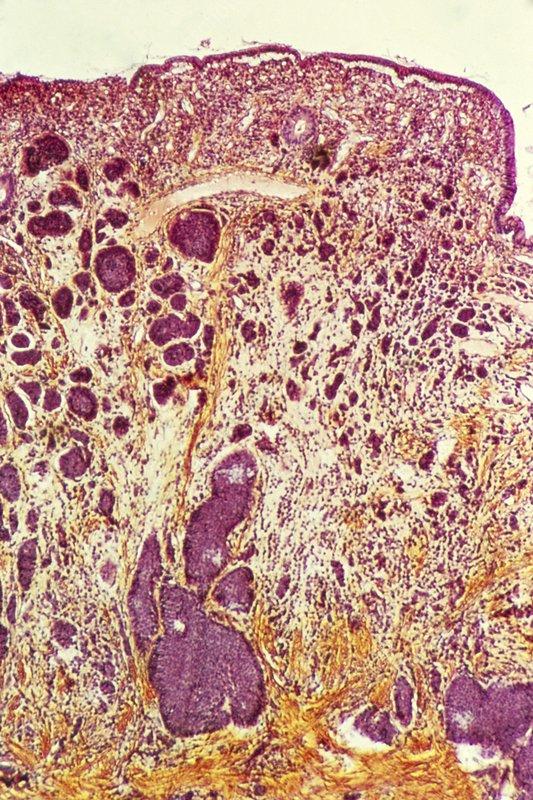 Intestinal cancer, light micrograph