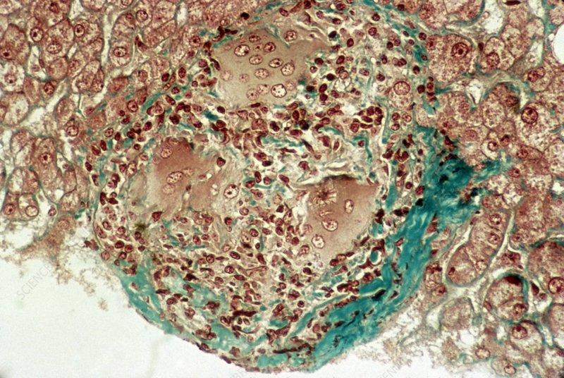 Liver sarcoidosis, light micrograph