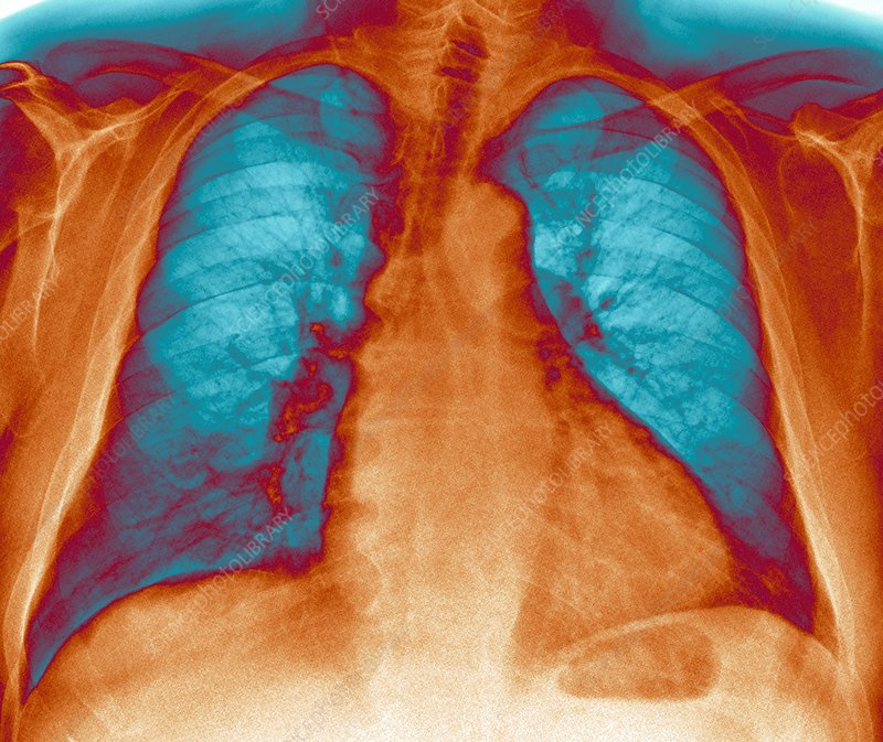 Enlarged heart, X-ray