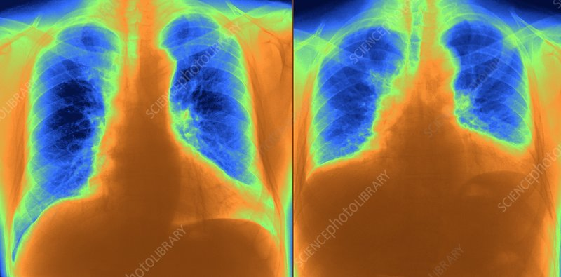 Healthy lungs, X-ray