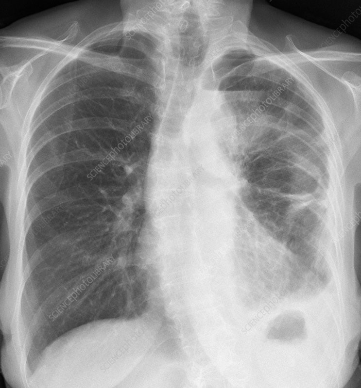 Mesothelioma lung cancer, X-ray