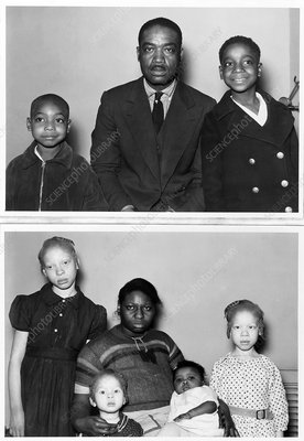 Family with children with albinism, 1930s