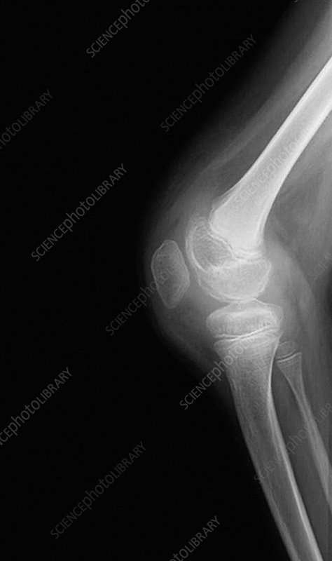 Knee joint infection, X-ray
