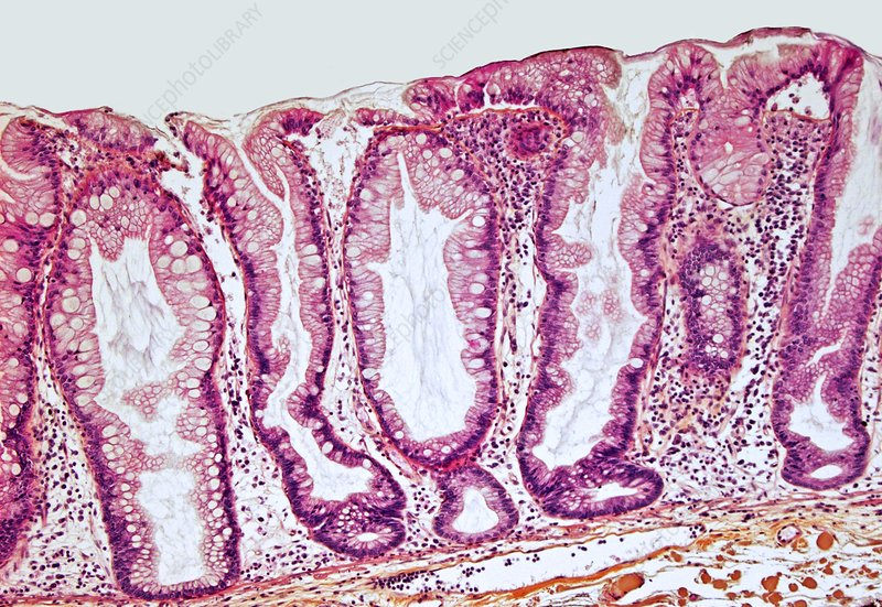 Colon cancer, light micrograph