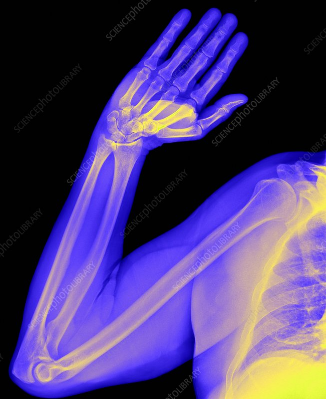 Healthy arm, X-ray