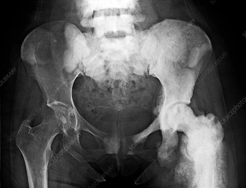 Bone cancer, X-ray
