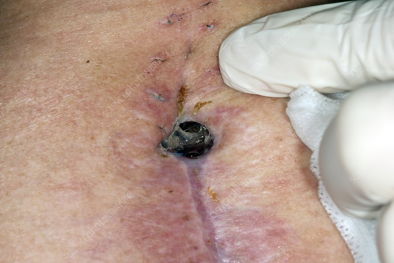 Infected spinal surgery wound