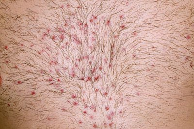 Folliculitis after chest waxing