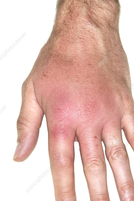 Infected insect bite to the hand