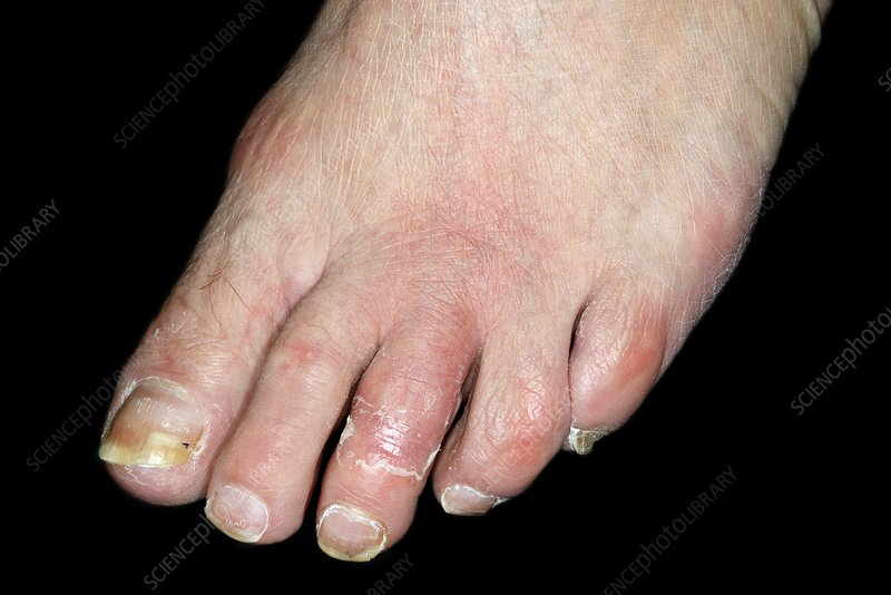 Inflamed foot due to cellulitis