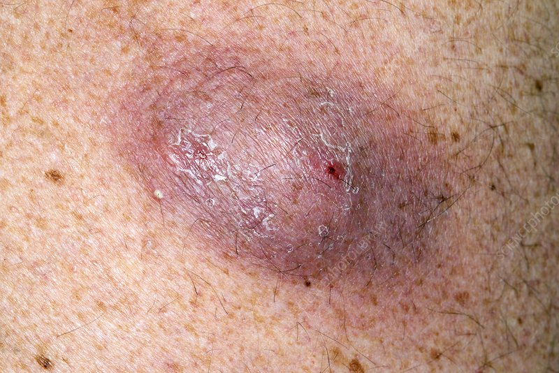 Infected sebaceous cyst on back - Stock Image C021/3298 ...
