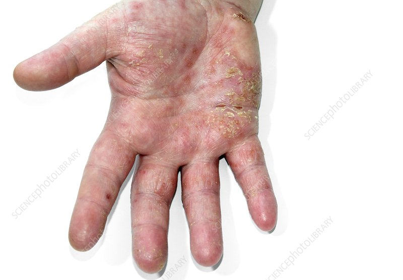 Eczema on hand of a young boy
