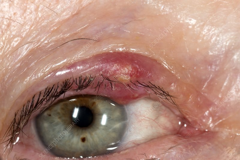 Infected eyelid cyst