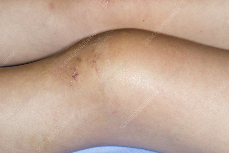 Knee swelling after surgery