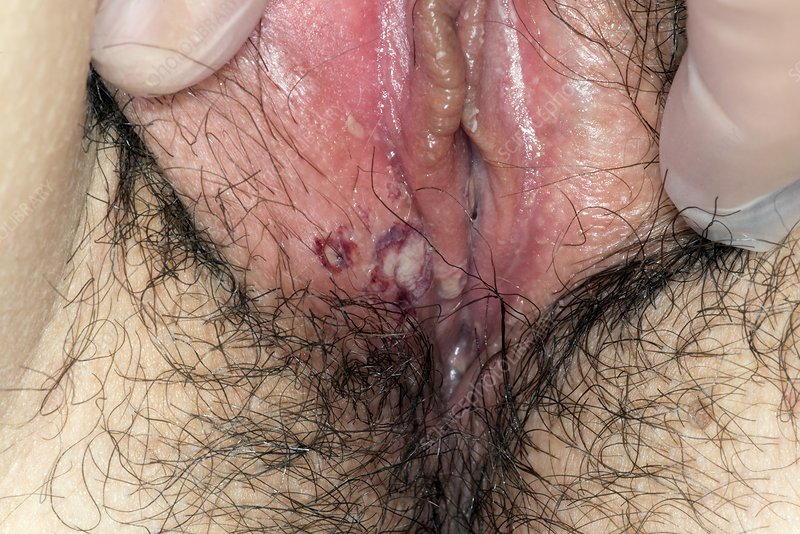 Herpes simplex blisters on labia
