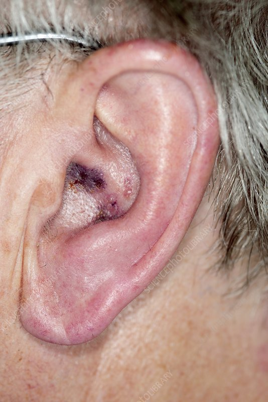 Shingles in the ear