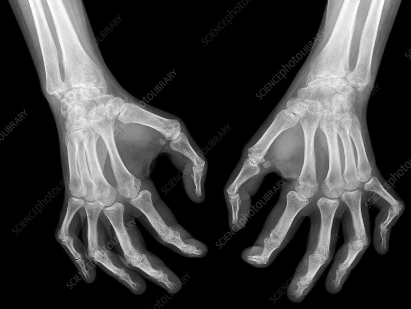Arthritis of the hands, X-ray